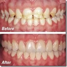 tooth restoration