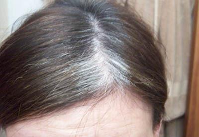 Tricks to Reversing Gray Hair - Michael Stein